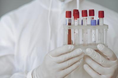 Vaksin Sinovac Mulai Didistribusikan ke Masyarakat